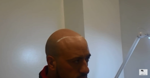 zar-before-smp-hairline