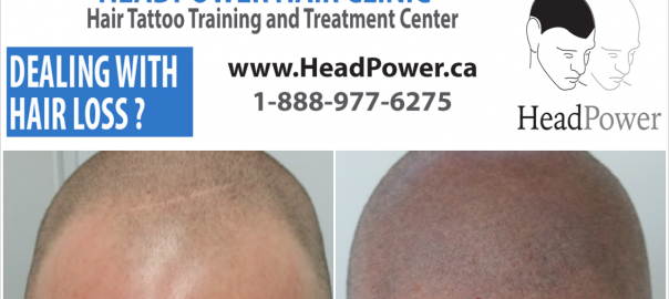 headpower-scalpmicropigmentaton-april12-2016-client