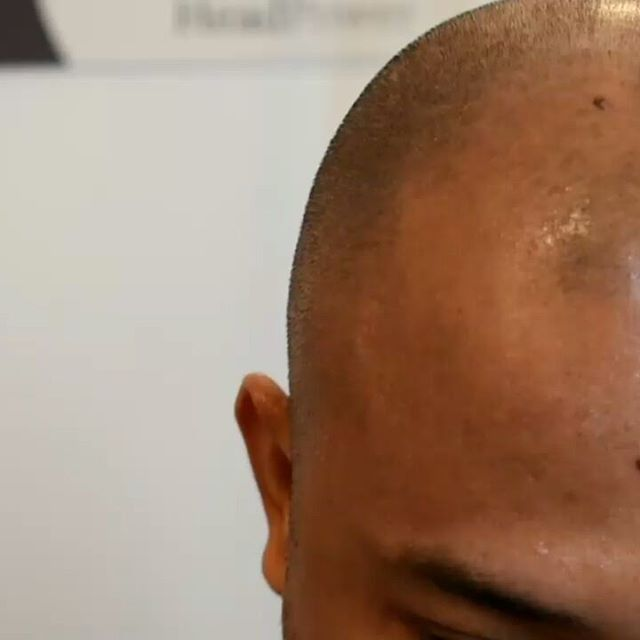 Scalp Micropigmentation Training